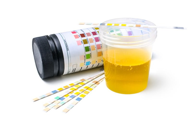 Employee Urine Analysis Test